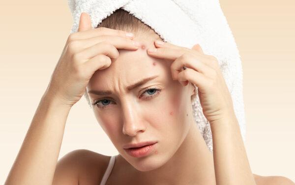 C'est Quoi L'acné ?